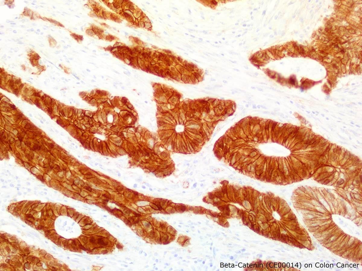 Beta-Catenin IHC Antibody